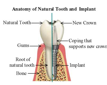 Dental implants procedures-family dental care lagos