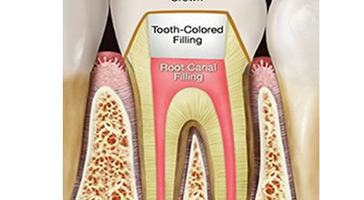 root-canal-family-dental-care-lagos-procedure