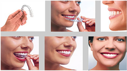 Family Dental Cares clearpath aligners