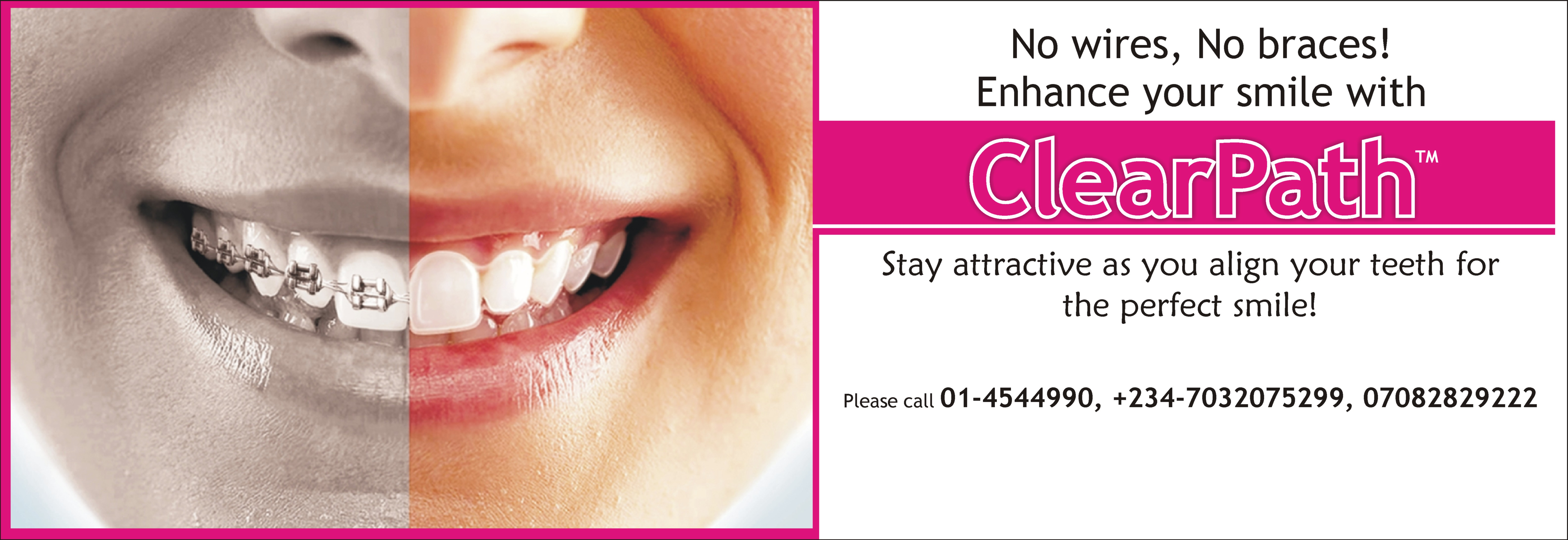 Family-Dental-Cares-Lagos-Clearpath-Aligners