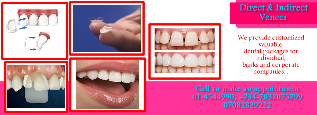 Treatment-Direct-and-indirect-veneer-family-dental-cares-lagos-1024x373